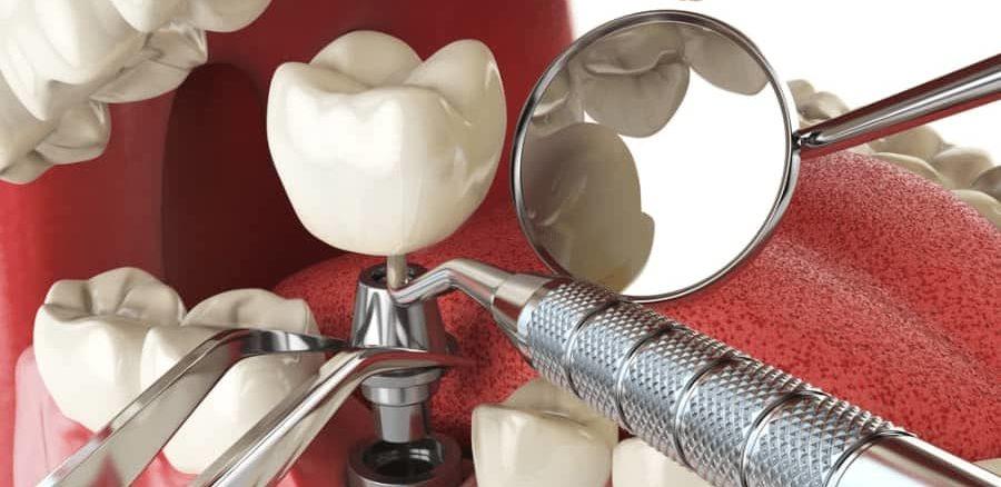 الجراحة الجيدة تمنع مخاطر زراعة الأسنان