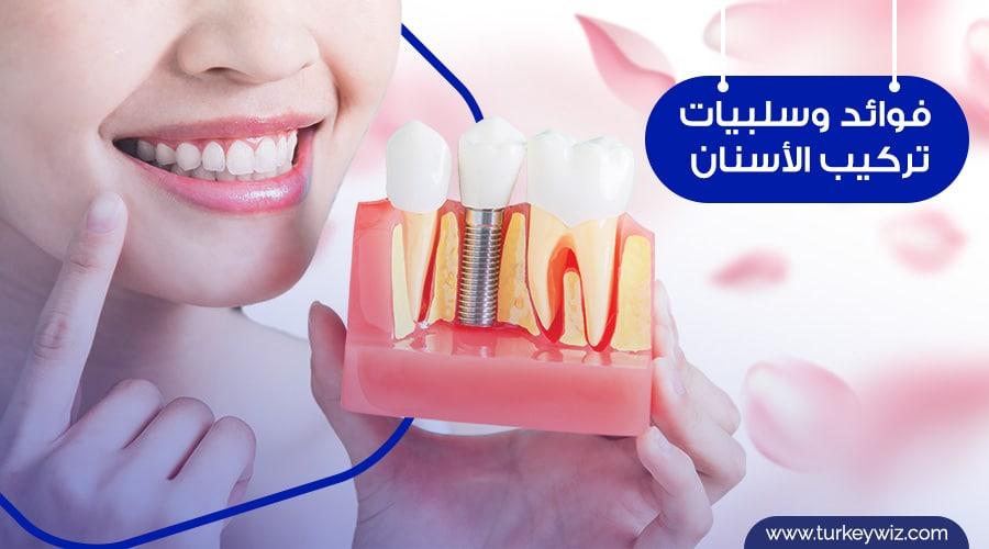 أنواع تركيب الأسنان المختلفة