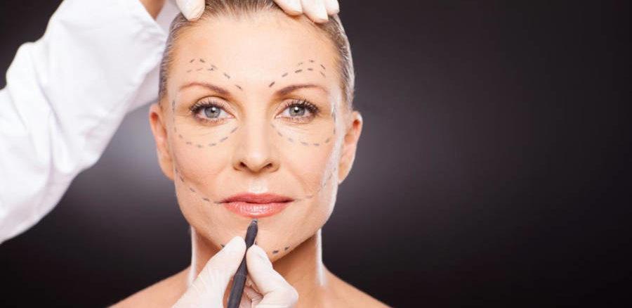 صورة توضيحية لإجراءات شد الوجه في تركيا لامرأة في منتصف العمر