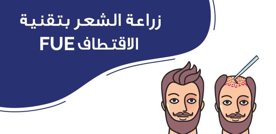 زراعة الشعر بتقنية الاقتطاف fue