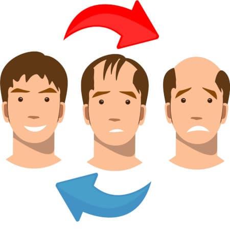 توضيح لخطوات علاج الصلع عبر عملية زراعة الشعر