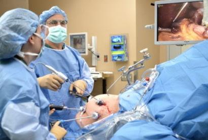 فريق طبي ينفذ عملية قص المعدة بالمنظار