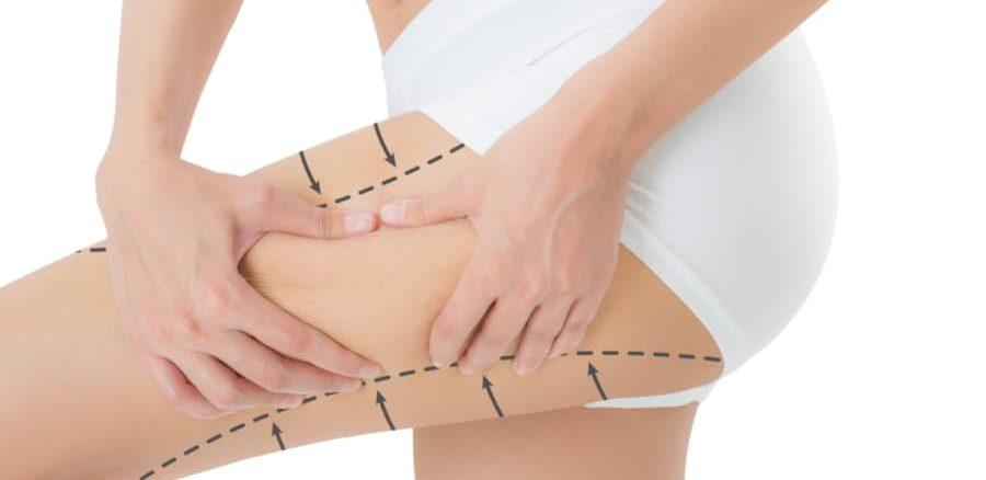 نتائج عملية شفط الدهون الأرداف