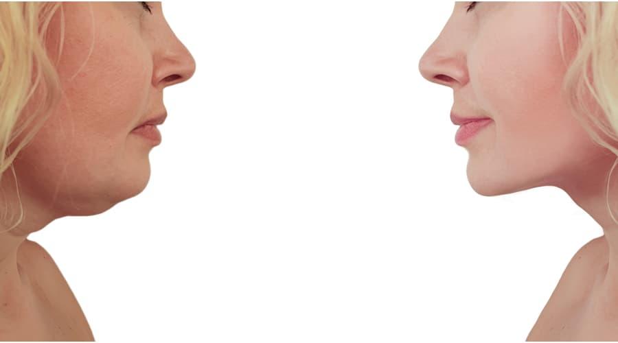 عملية شفط اللغلوغ لتحسين هيئة الوجه والرقبة تركي ويز