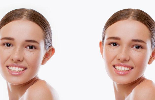 توضيح لنتائج تجميل الأذن في تركيا لأنثى شابة